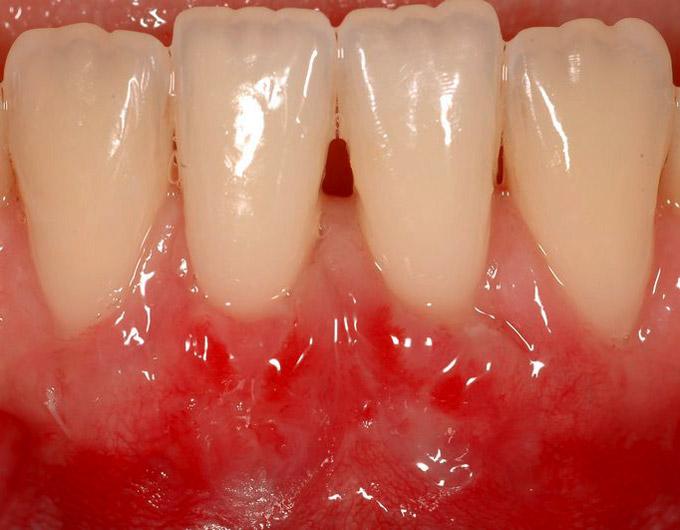 estetica-dental-recesion-encias_2